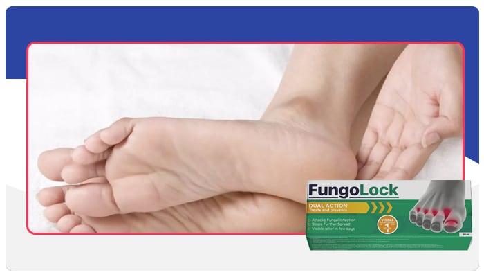 Fungolock Comment le médicament fonctionne-t-elle?